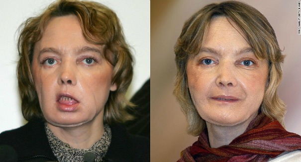 The incredible story of a woman who changed the face of modern medicine … literally
